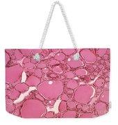 Thyroid Lm Weekender Tote Bag