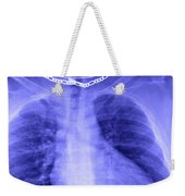 X-ray Of Enlarged Heart Weekender Tote Bag