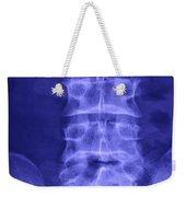 X-ray Of Lower Lumbar Spine Weekender Tote Bag