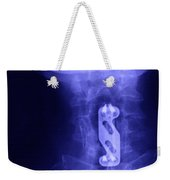 X-ray Of Neck Implant Weekender Tote Bag