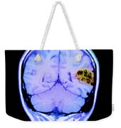 Mri Of Brain Avm Weekender Tote Bag