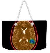 Mri Of Brain Avm Weekender Tote Bag