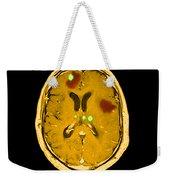 Brain Tumors Weekender Tote Bag