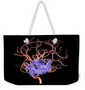 3d Angiogram Of Temporal Lobe Avm Weekender Tote Bag