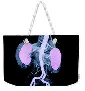 Abdominal Aorta And Kidneys Weekender Tote Bag