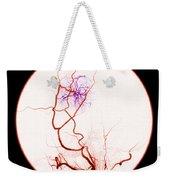 Abnormal Blood Flow Weekender Tote Bag