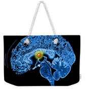Colloid Cyst Weekender Tote Bag