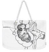 Diverticulitis Weekender Tote Bag