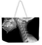 Human Skull And Cervical Spine Weekender Tote Bag