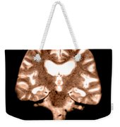 Mri Of Brain With Alzheimers Disease Weekender Tote Bag