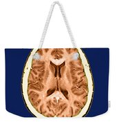 Normal Cross Sectional Mri Of The Brain Weekender Tote Bag