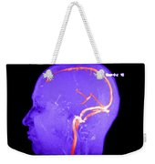 Normal Venous Anatomy Weekender Tote Bag