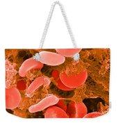 Red Blood Cells, Sem Weekender Tote Bag