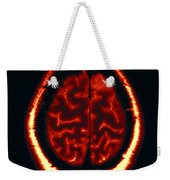 Mri Of Normal Brain Weekender Tote Bag