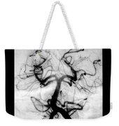 Angiogram Of Embolus In Cerebral Artery Weekender Tote Bag