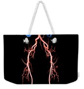 Ct Angiogram Of Abdomen And Legs Weekender Tote Bag