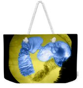 Distal Stomach And Duodenum Weekender Tote Bag