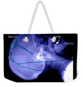 Lateral X-ray Of Deep Electrodes Weekender Tote Bag