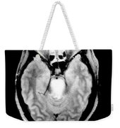 Mri Of Brainstem Glioma Weekender Tote Bag