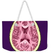 Normal Cross Sectional Mri Of The Brain Weekender Tote Bag