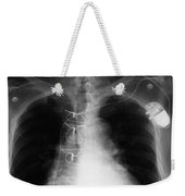 X-ray Of Implanted Defibulator Weekender Tote Bag