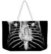 3d Cta Of Heart And Chest Weekender Tote Bag by Medical Body Scans