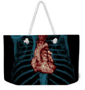 3d Ct Reconstruction Of Heart Weekender Tote Bag