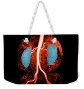 Abdominal Aorta, Kidneys And Iliac Weekender Tote Bag