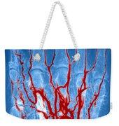 Hand Arteriogram Weekender Tote Bag