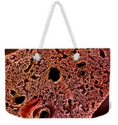 Mouse Lung, Sem Weekender Tote Bag by Science Source