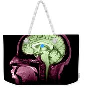 Mri Colloid Cyst Of Third Ventricle Weekender Tote Bag