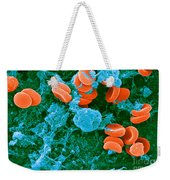 Red Blood Cells, Rouleaux Formation, Sem Weekender Tote Bag