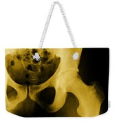 X-ray Of The Hip Weekender Tote Bag