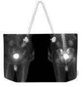 Bone Scan Weekender Tote Bag by Medical Body Scans