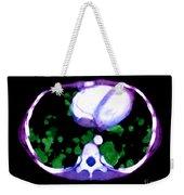Metastatic Disease Of The Lungs Weekender Tote Bag
