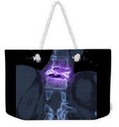 Severe Osteoporosis Weekender Tote Bag