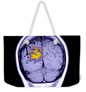 Mri Of Arterial Venous Malformation Weekender Tote Bag