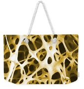 Sem Of Human Shin Bone Weekender Tote Bag by Science Source