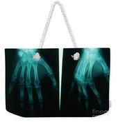 Arthritic & Normal Hand Weekender Tote Bag