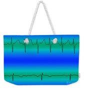 Atrial Fibrillation & Normal Heart Beat Weekender Tote Bag