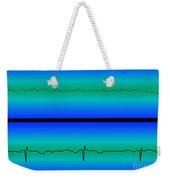 Atrial Flutter & Normal Heart Beat Weekender Tote Bag