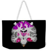 Brain Areas Affected By Alzheimers Weekender Tote Bag
