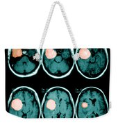 Brain Tumor Weekender Tote Bag