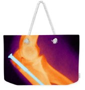 Broken Arm With Metal Pin, X-ray Weekender Tote Bag by Science Source