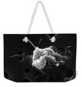 Cancer Cell Death 6 Of 6 Weekender Tote Bag by Science Source