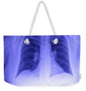Chest X-ray Weekender Tote Bag
