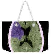 Ct Of Stroke Weekender Tote Bag