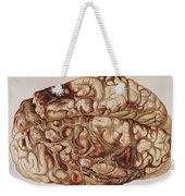 Encircling Gunshot-wound In Brain, 1898 Weekender Tote Bag