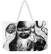 Heart Anatomy, Carl Von Rokitansky, 1875 Weekender Tote Bag
