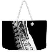 Herniated Disc In Cervical Spine Weekender Tote Bag